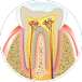 Dental implants San Carlos - Dental Video