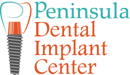 Immediate Implant with Temporary Tooth San Carlos - Peninsula Dental Implant Center