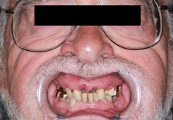 Dental implants San Carlos - Before 01