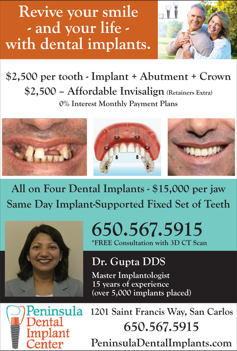 $2,500 per tooth - Implant + Abutment + Crown