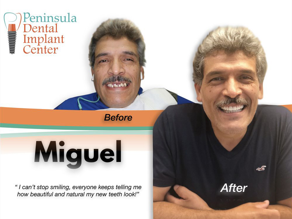 Dental Implants San Carlos | Peninsula Dental Implant Center