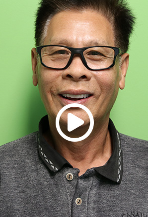 Success Story by Patient, Sung Lee at Peninsula Dental Implant Center