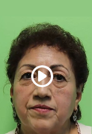 Success Story by Patient, Connie at Peninsula Dental Implant Center