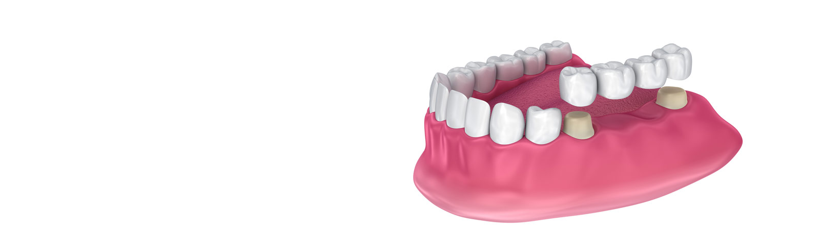 3d render of jaw and implants with dental bridge