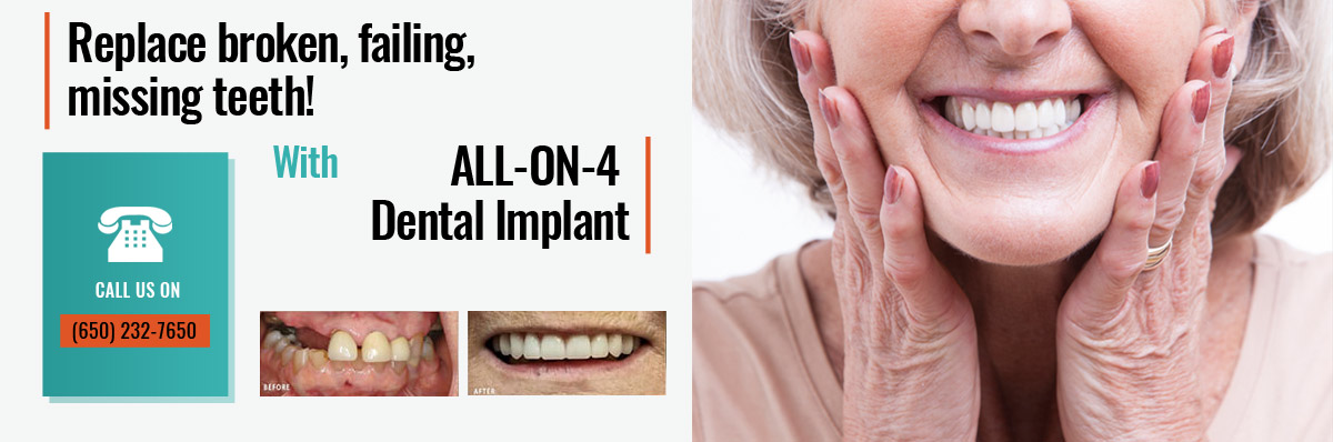 Promotion - All-ON-4 Dental implant
