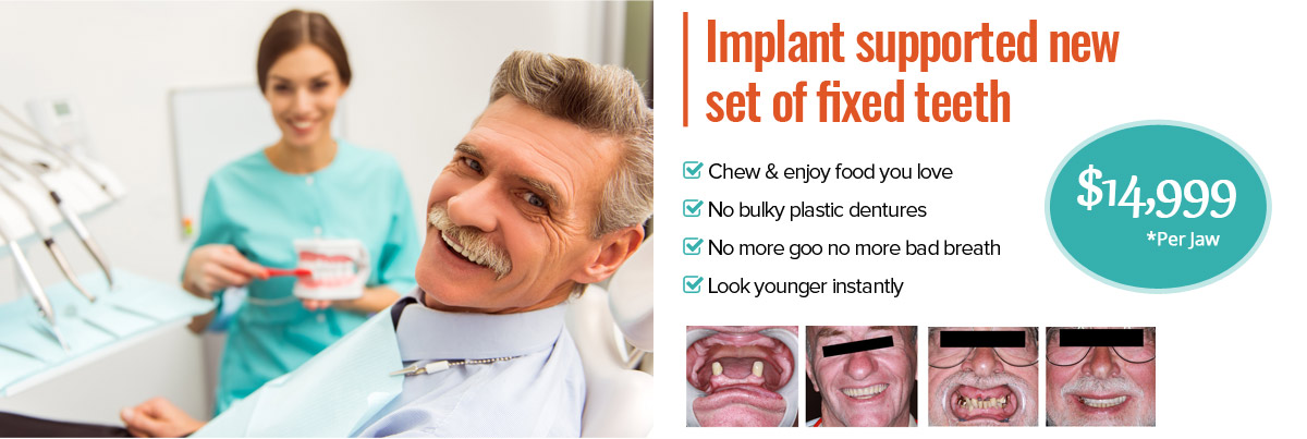 Implant supported new set of fixed teeth