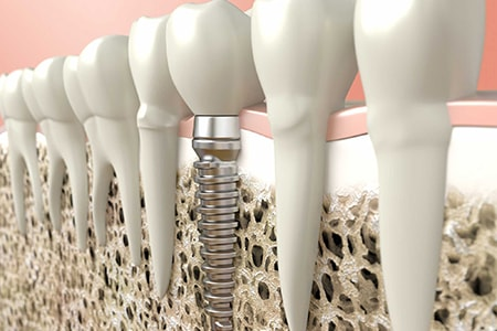 A4 Complete Implant Cost San Carlos CA