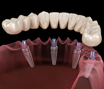 Dentist near Menlo Park explains about all on 4 dental implants