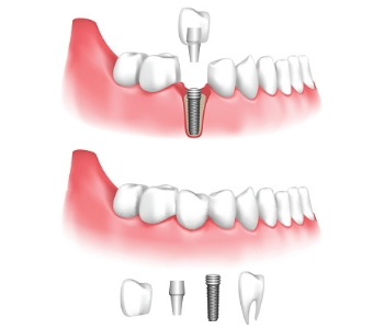 Implant Dentistry San Bruno CA