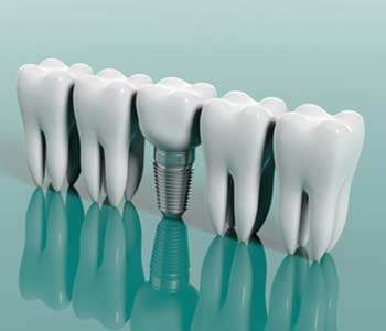 Start the new year with a beautiful new smile with dental implants in San Mateo
