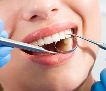 Process of Dental Implants and What to Expect Dentist Near Redwood City