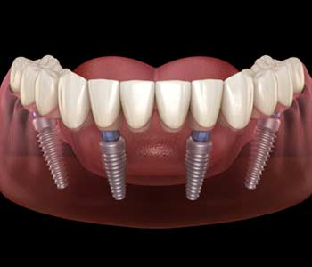 Smile Makeover with All on 4 Dental Implants in an Francisco Bay Area