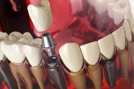 Implants For Missing Teeth San Mateo