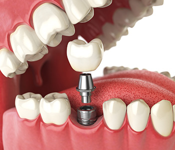 Temporary Tooth Replacement in San Carlos CA area