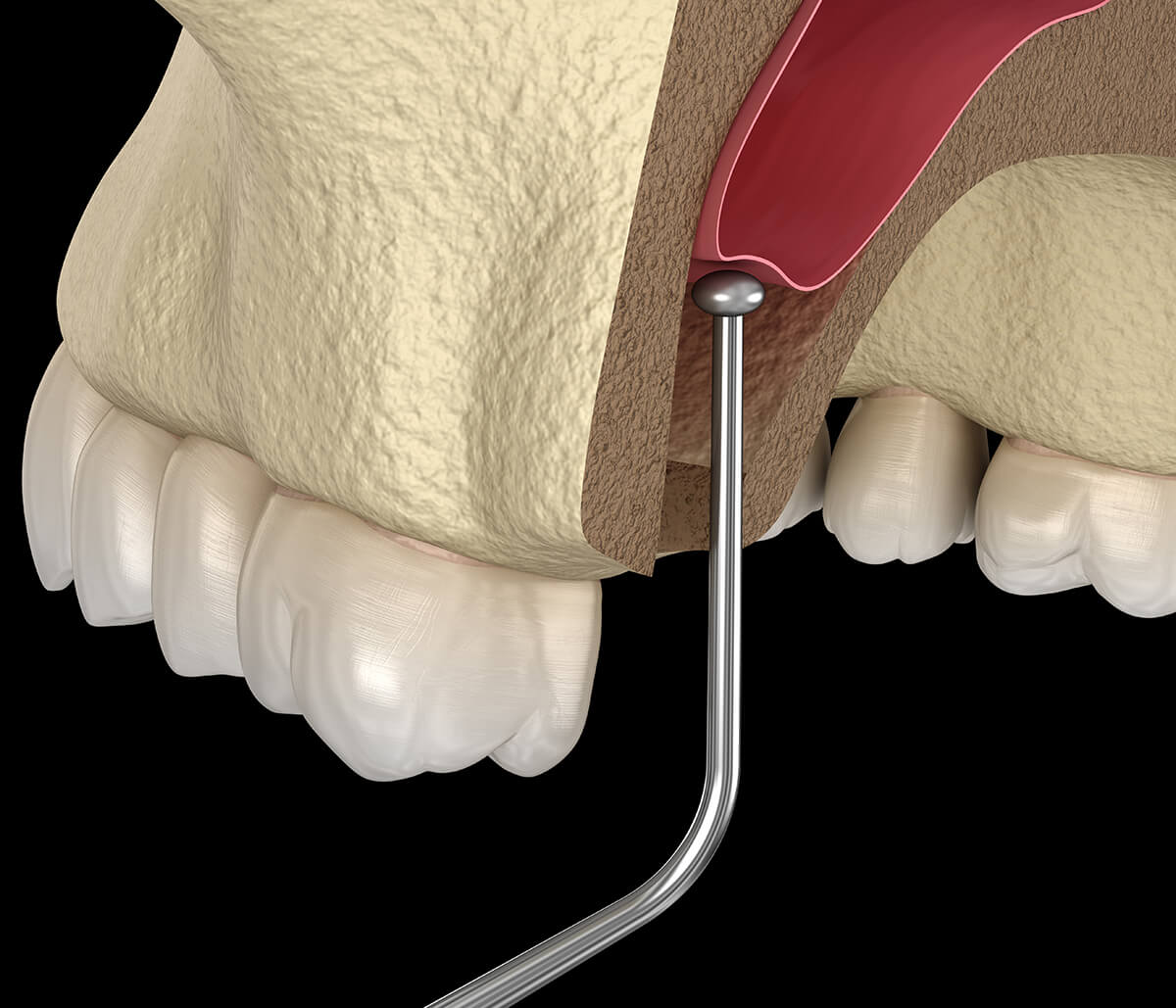 One Day Teeth Replacement at Peninsula Dental Implant Center in San Mateo Area