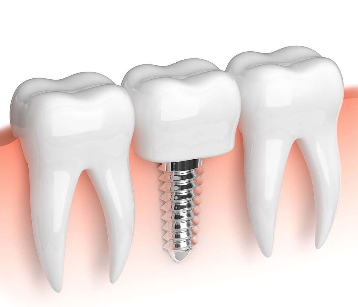 What is the Cost per Tooth for Dental Implants in Daly City, California Area?