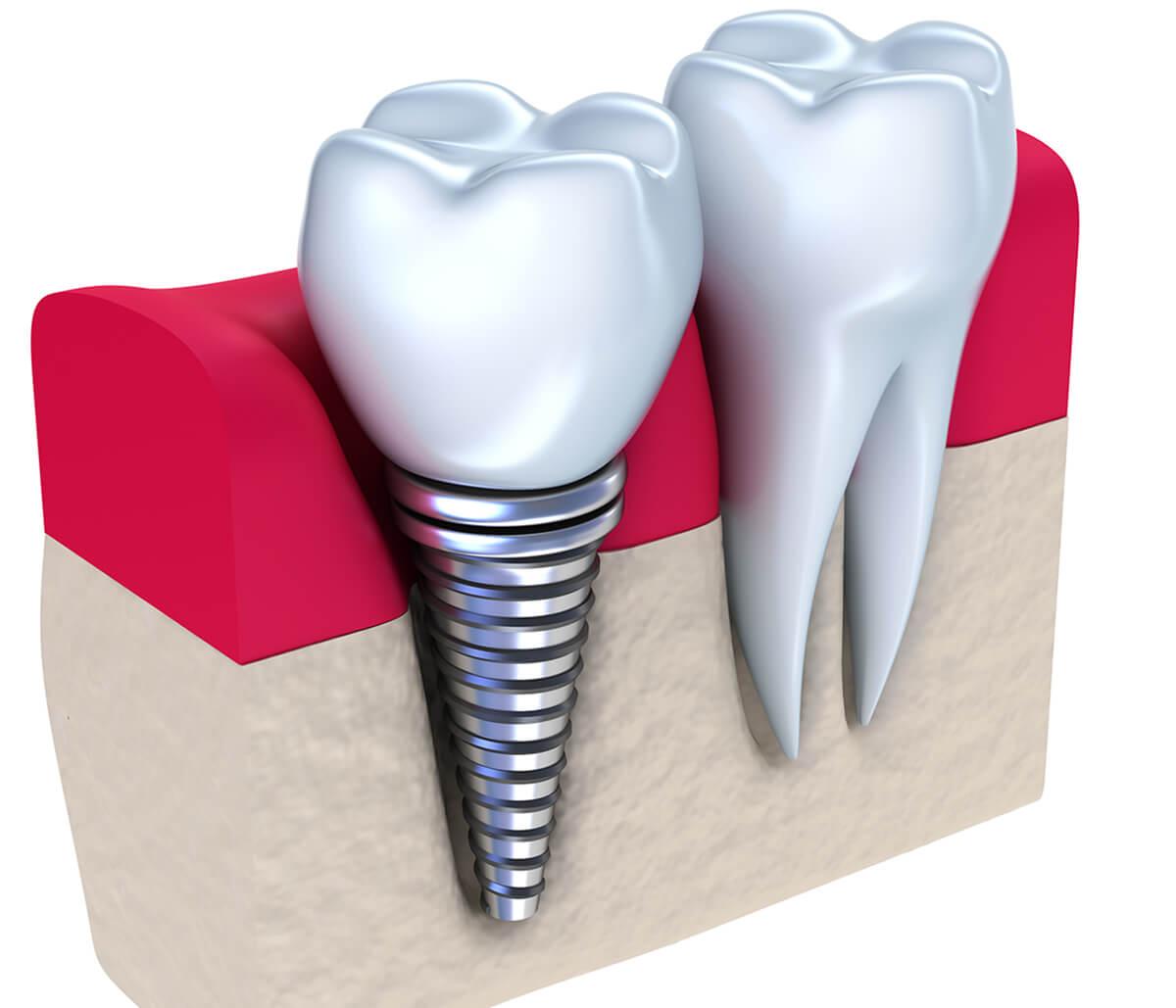 Cost of Dental Implants AT Peninsula Dental Implant Center IN Menlo Park Area