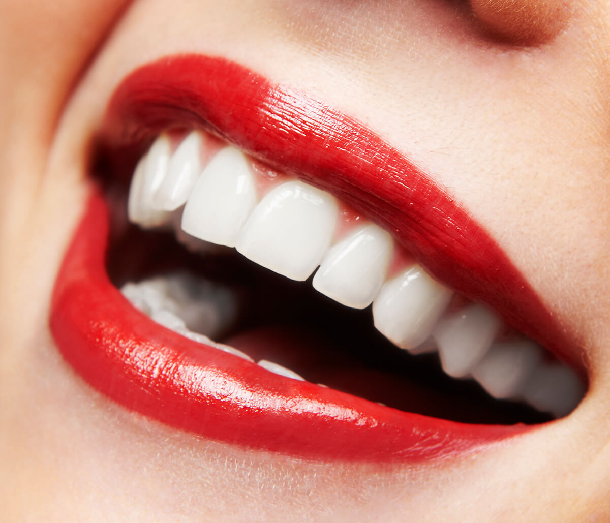 Clear Braces for Teeth Straightening in Palo Alto Area